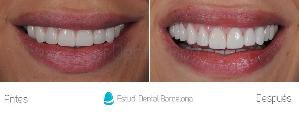 Dientes cortos y ausencia dental - Antes y después carillas dentales - frente