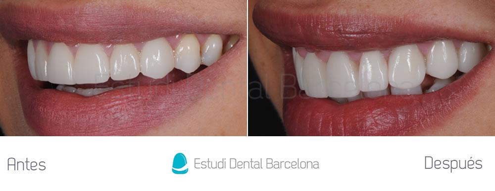 Dientes cortos y ausencia dental - Antes y después carillas dentales - izquierda