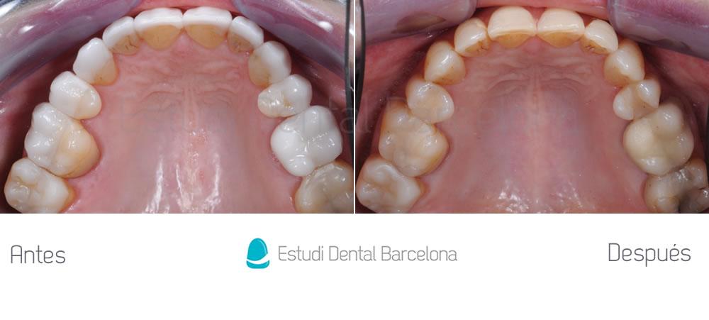 dientes-envejecidos-caso-clinico-carillas-de-porcelana-interior-superior