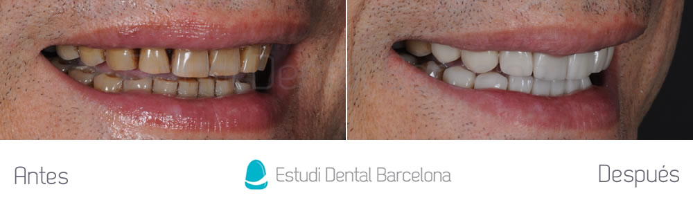 Dientes muy manchados caso clinico con carillas dentales for Estudi dental barcelona