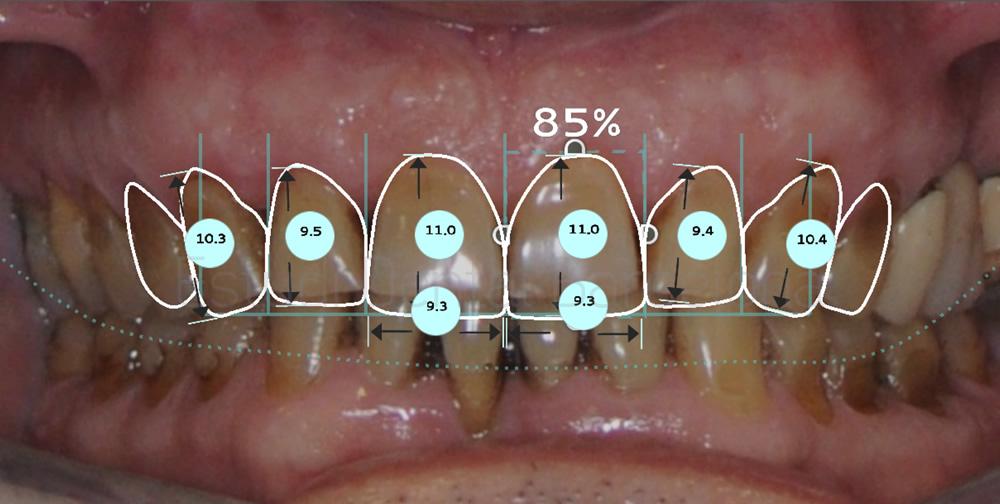 Proporciones caso clínico dientes manchados