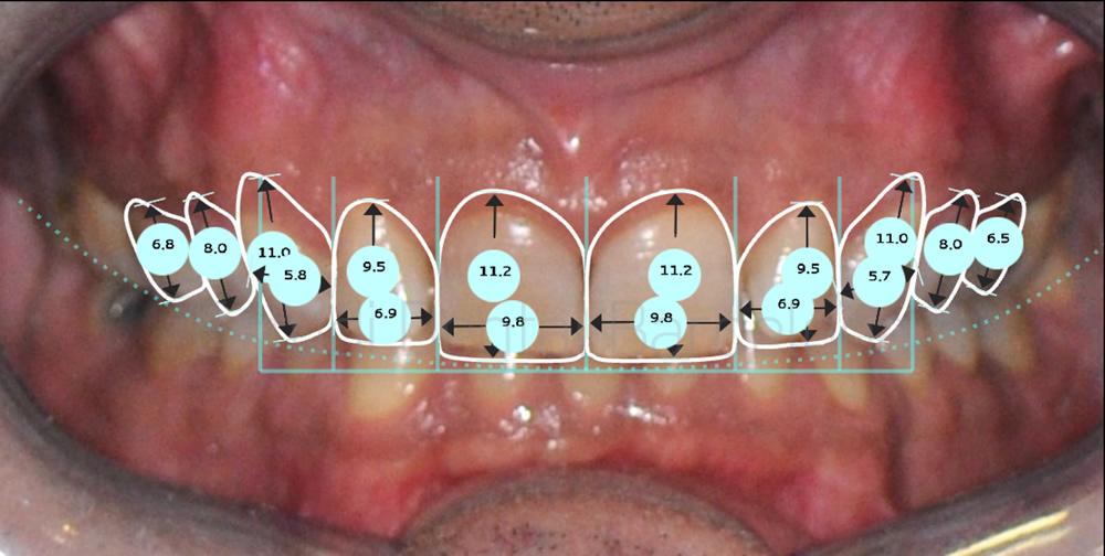 Dientes oscuros y malposicion dental - Caso de carillas - proporciones
