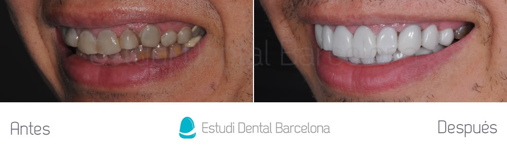 Dientes oscuros y tetraciclinas caso cl nico con for Estudi dental barcelona