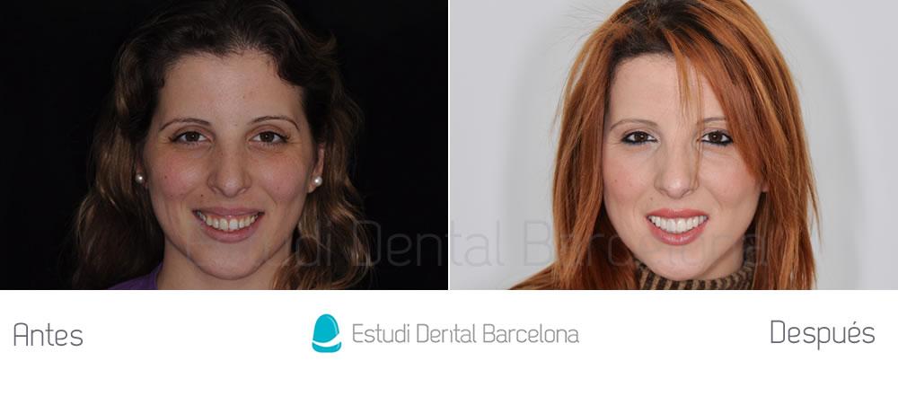Diseño de sonrisa con carillas de porcelana, implantes dentales y Invisalign - caso clínico
