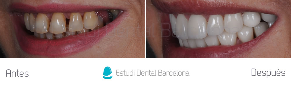 Enc as retraidas caso cl nico de carillas dentales for Estudi dental barcelona