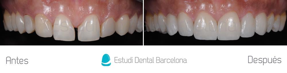 Espacios entre dientes y carillas - caso cliníco arcada superior