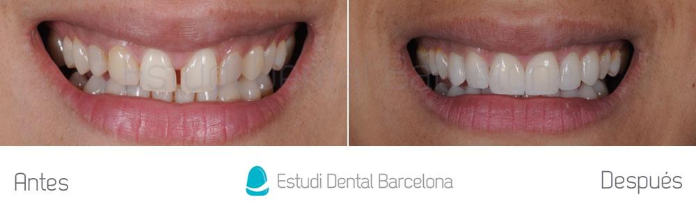 Cerrar espacio entre dientes - carillas - frente
