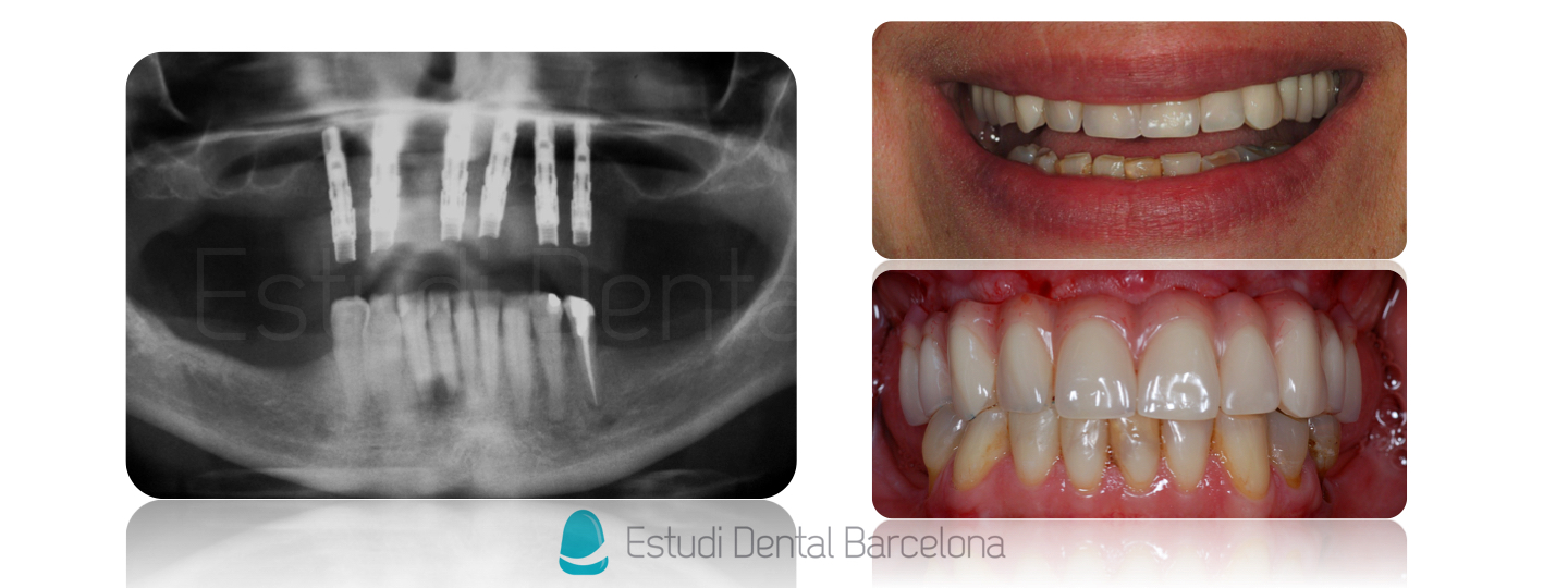 Implantes dentales tipos de tratamientos de implantes y for Estudi dental barcelona