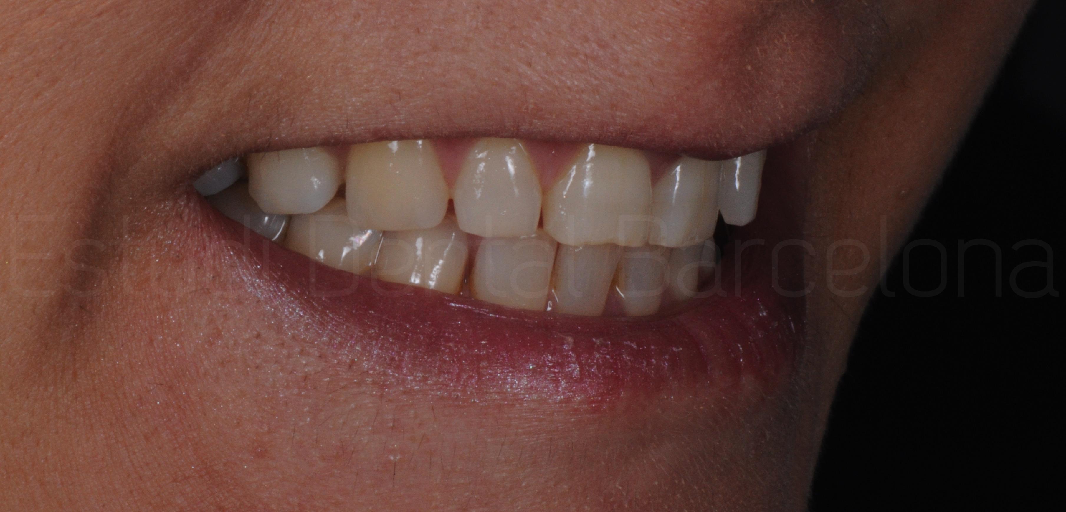 Microcarillas sin Tallado Dental-1