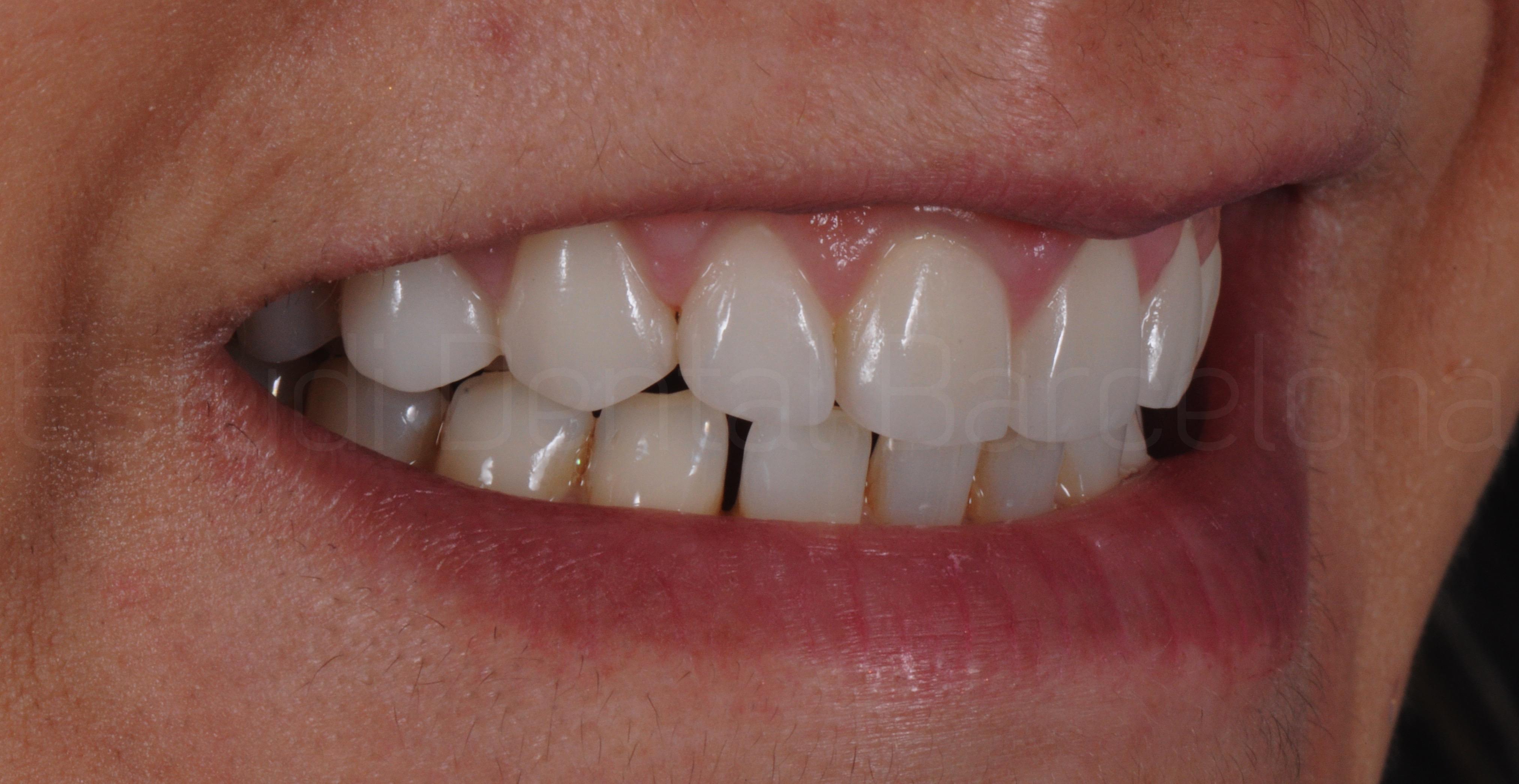 Microcarillas sin Tallado Dental-10