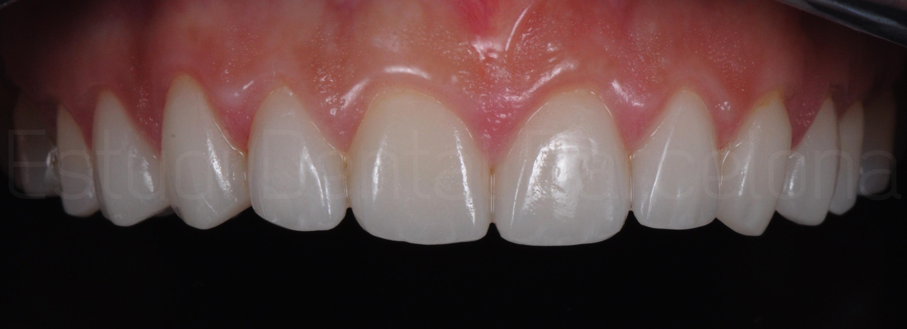 Microcarillas sin Tallado Dental-11