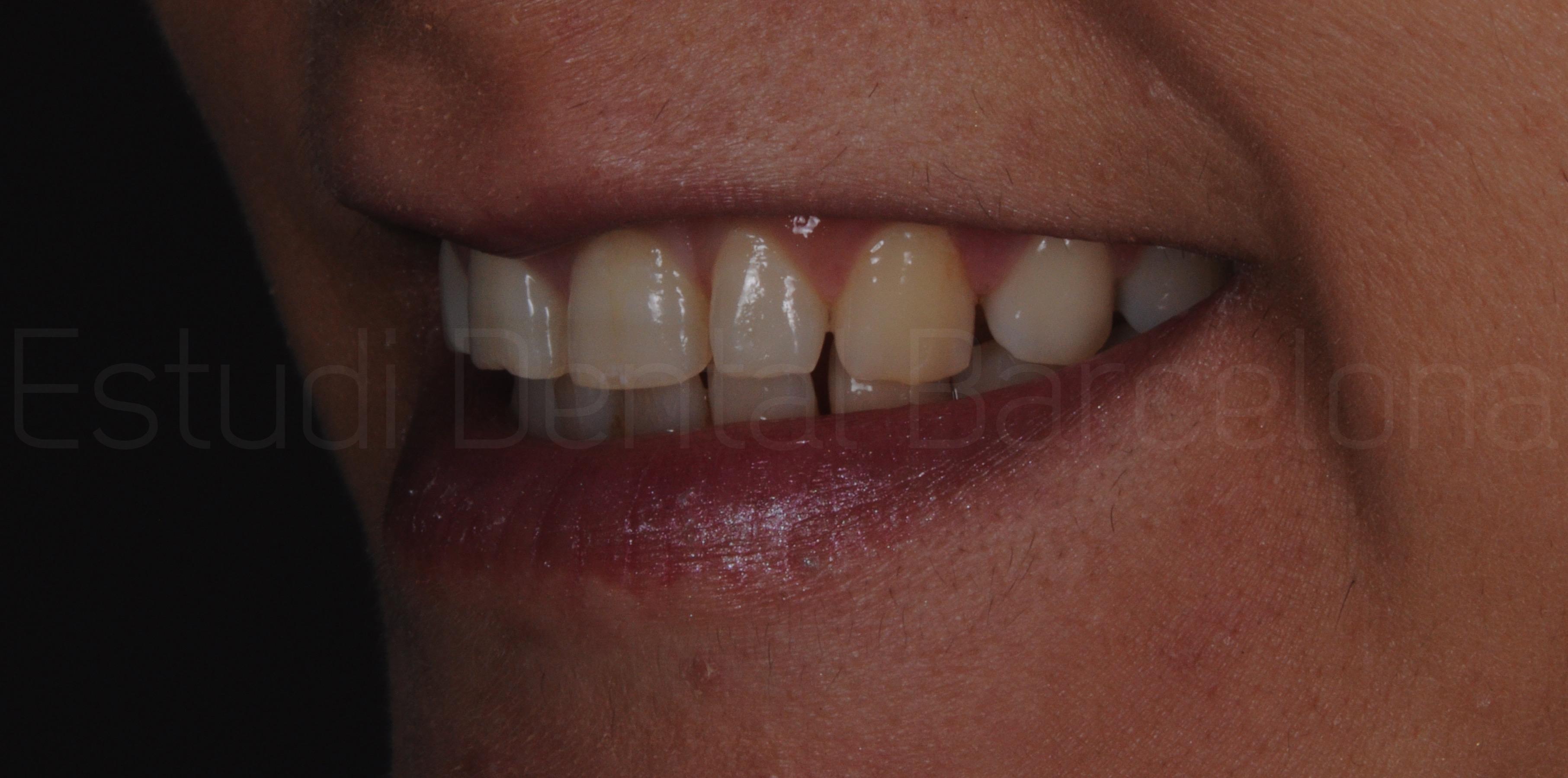 Microcarillas sin Tallado Dental-2