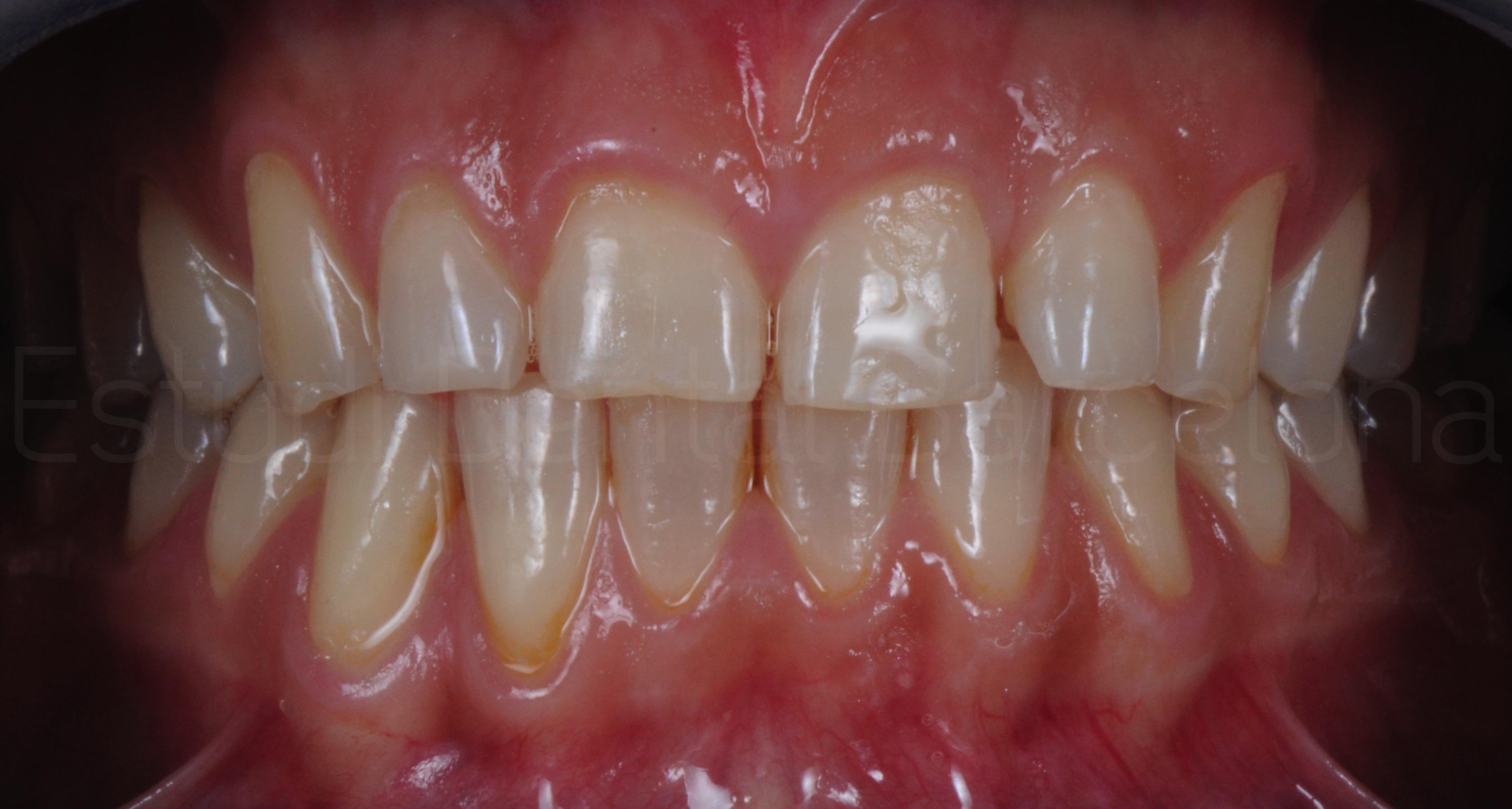 Microcarillas sin Tallado Dental-3