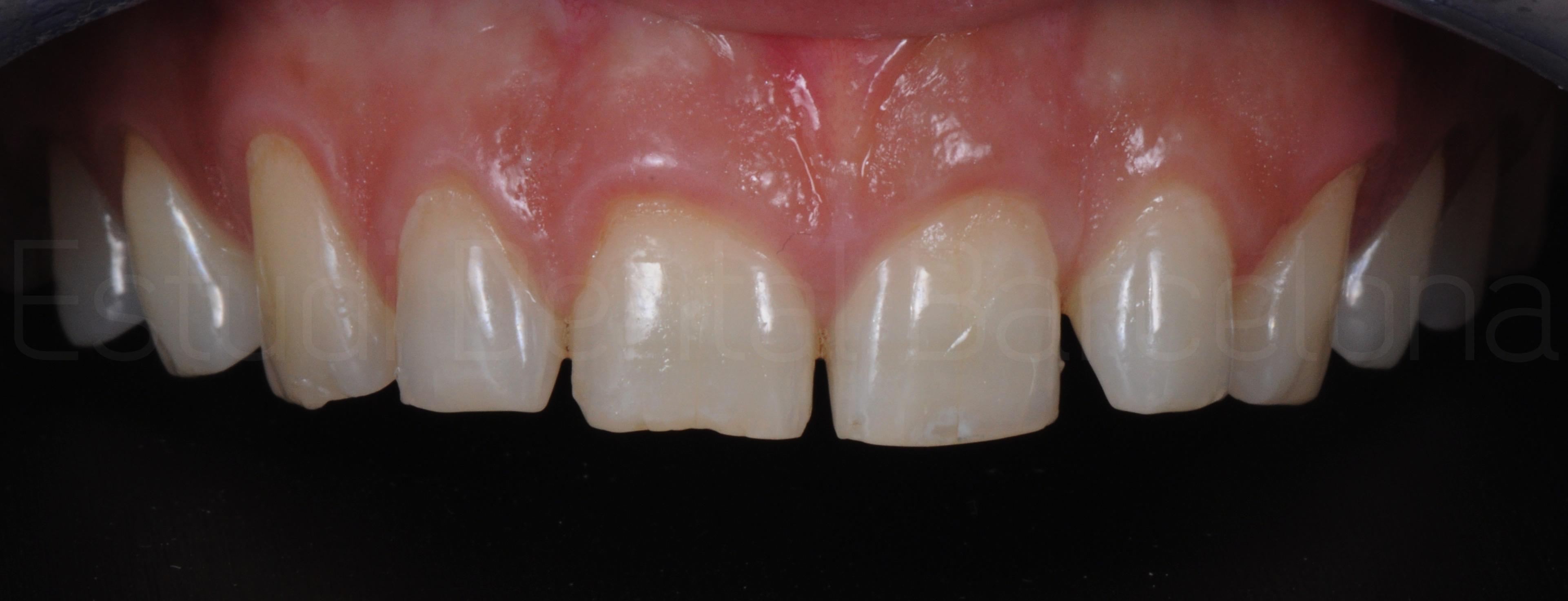 Microcarillas sin Tallado Dental-4