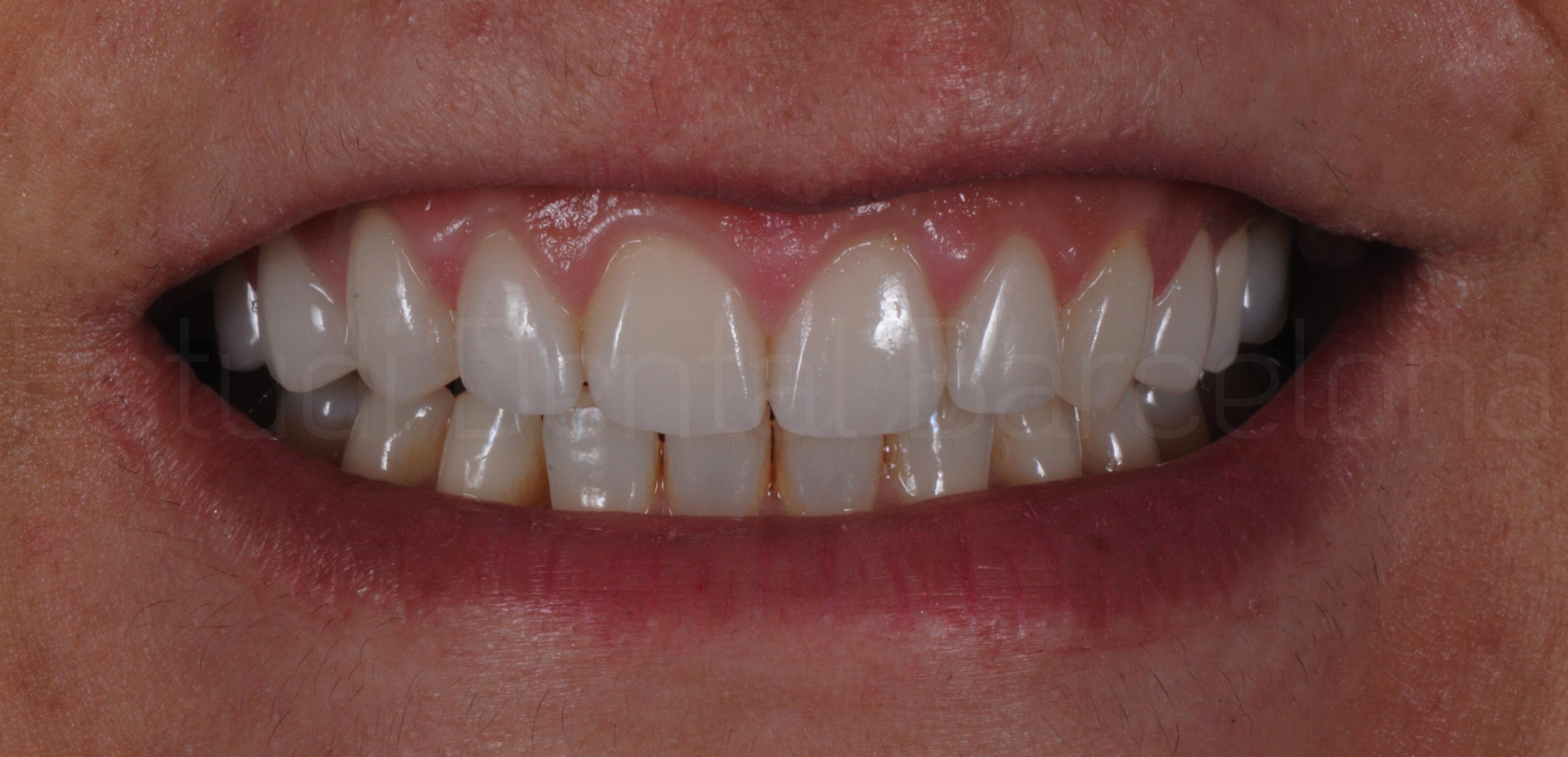 Microcarillas sin Tallado Dental-6