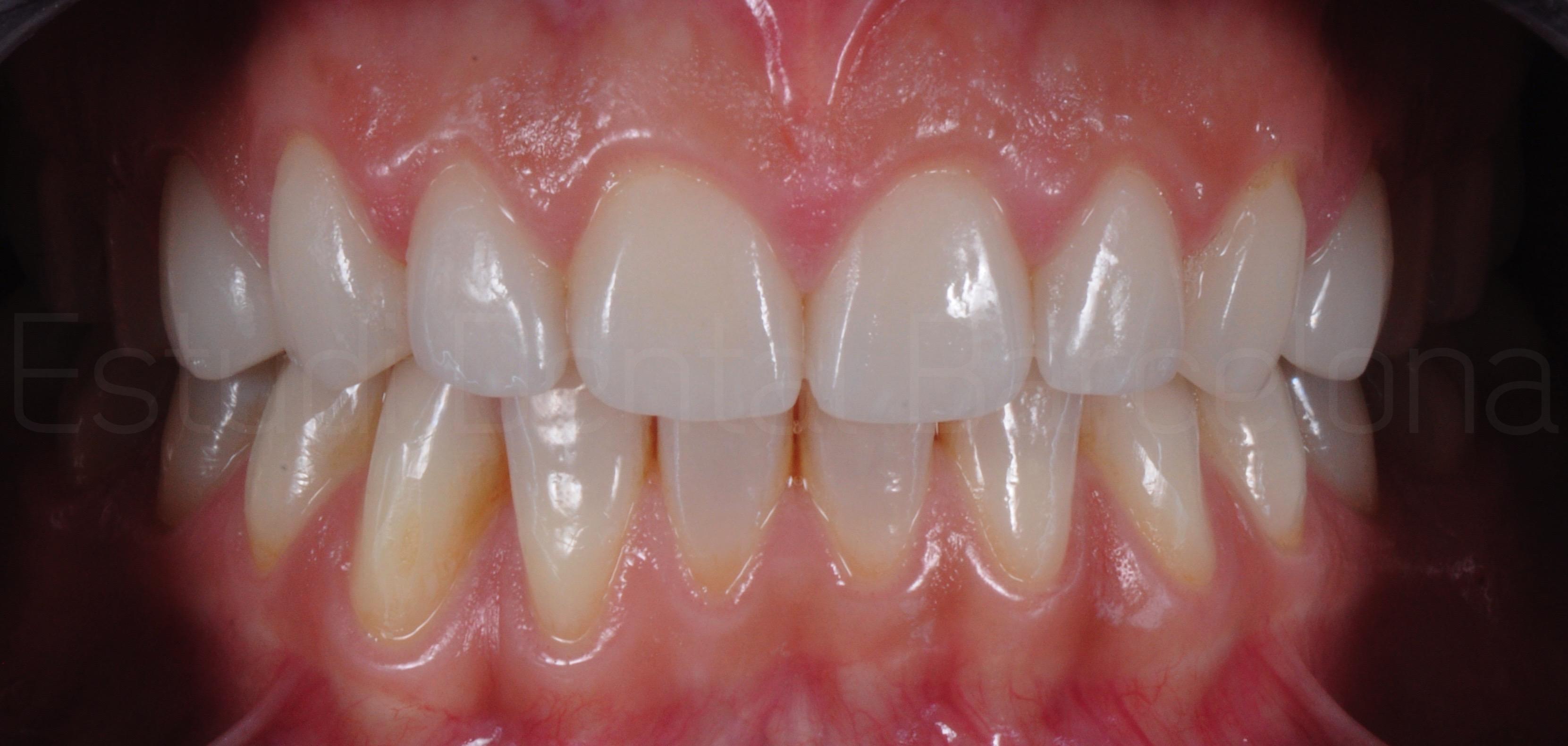 Microcarillas sin Tallado Dental-8