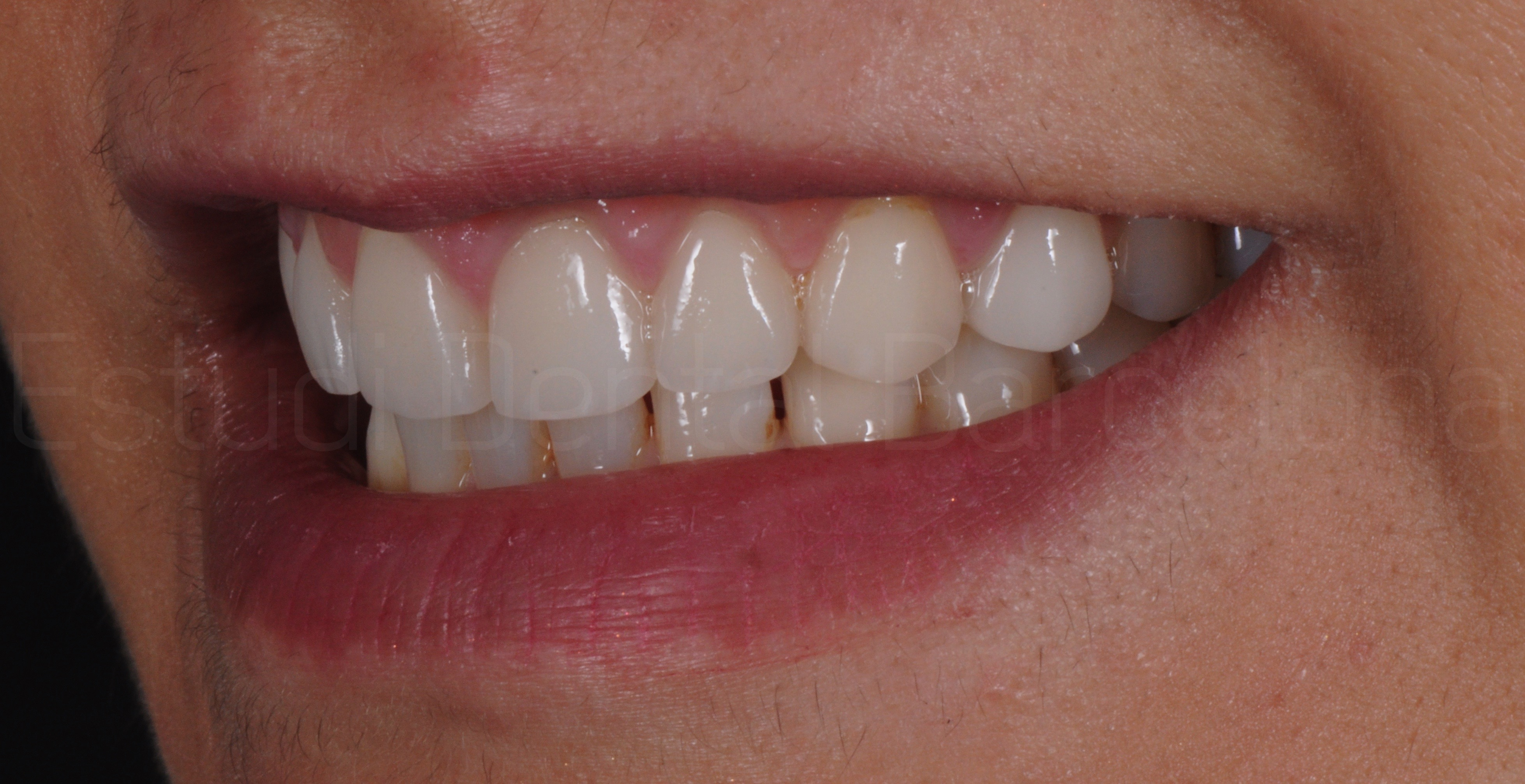 Microcarillas sin Tallado Dental-9