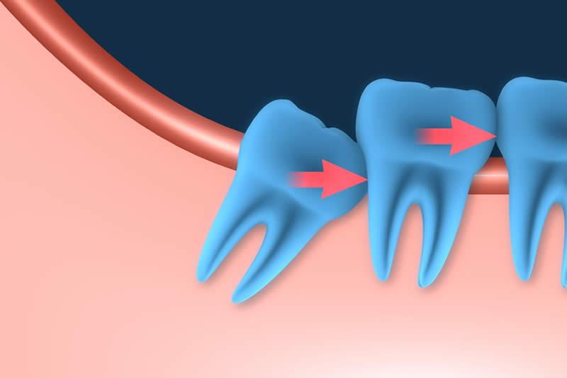 Ortodoncia para dientes incluidos Barcelona