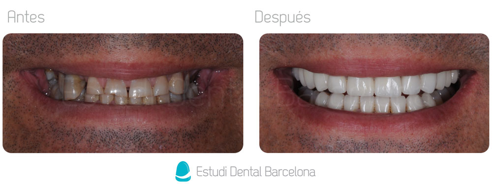 Zirconium Before and After Dental Prostheses