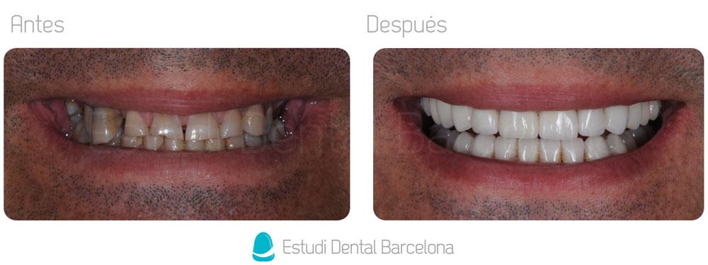 Protesis Dentales Zirconio Antes y Después