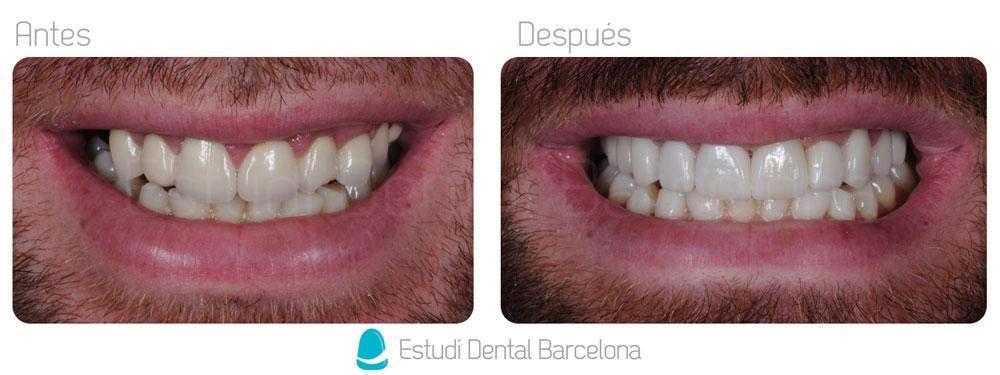 Dental Prostheses Barcelona