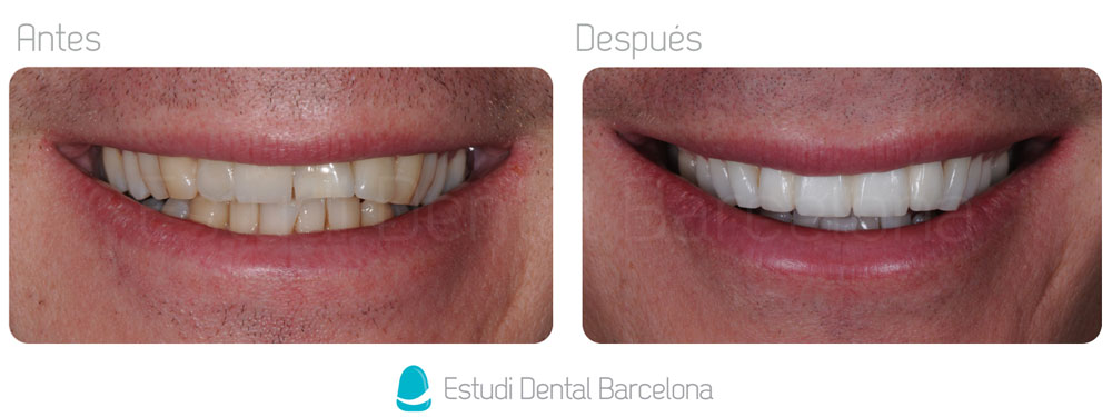Zirconium Dental Prostheses Barcelona