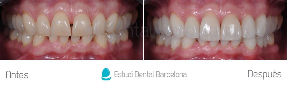 Caso clínico carillas sin tallado - caso cliníco para rejuvenecimiento dental - apretando