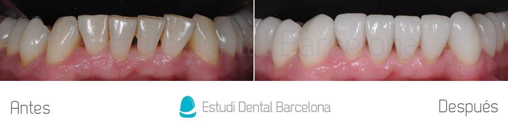 Rejuvenecimiento Dental con Carillas sin Tallado - caso cliníco arcada inferior