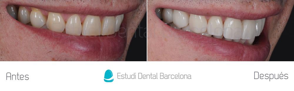 Antes y después carillas rejuvenecimiento dental