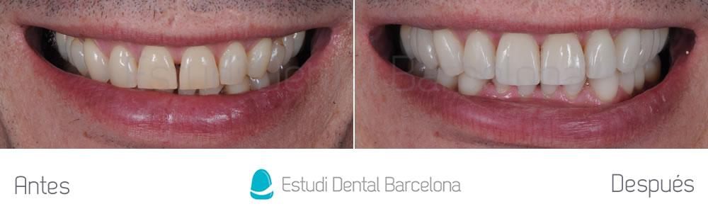 Antes y después carillas rejuvenecimiento dental frente