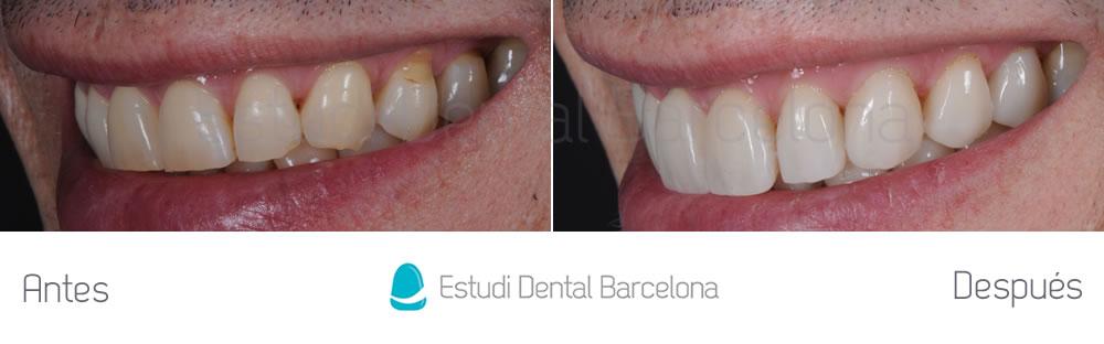 Antes y después carillas rejuvenecimiento dental izquierda