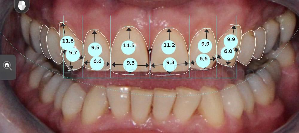 Caso clinico carillas rejuvenecimiento dental