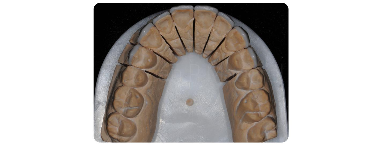 Tallado Carillas Dentales