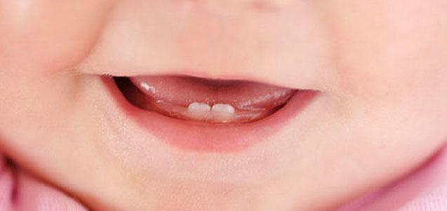 ¿Cuándo llevar a tu hijo al dentista por primera vez?