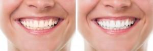 blanqueamiento dental casos clinicos en barcelona
