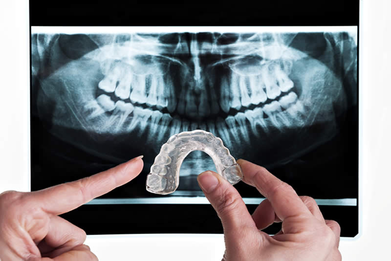 Ferula Dental para el bruxismo