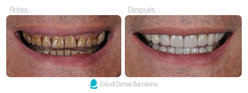 Caso carillas dentales dientes manchadas