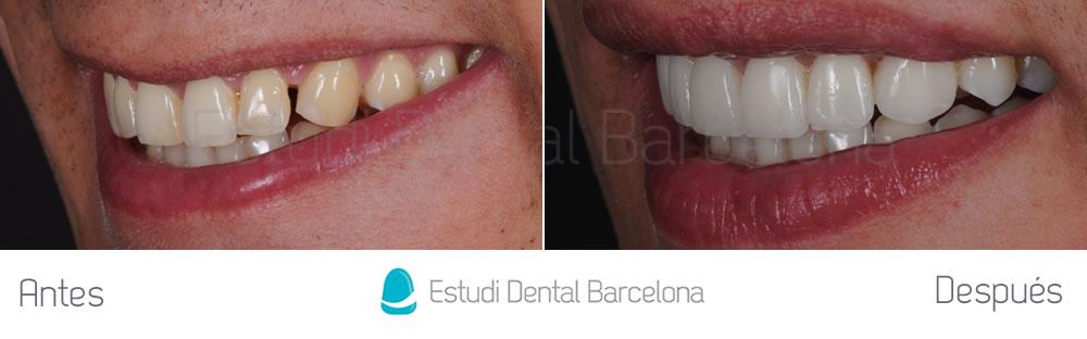 caso clinico carillas dentales sin tallado izquierda en Barcelona