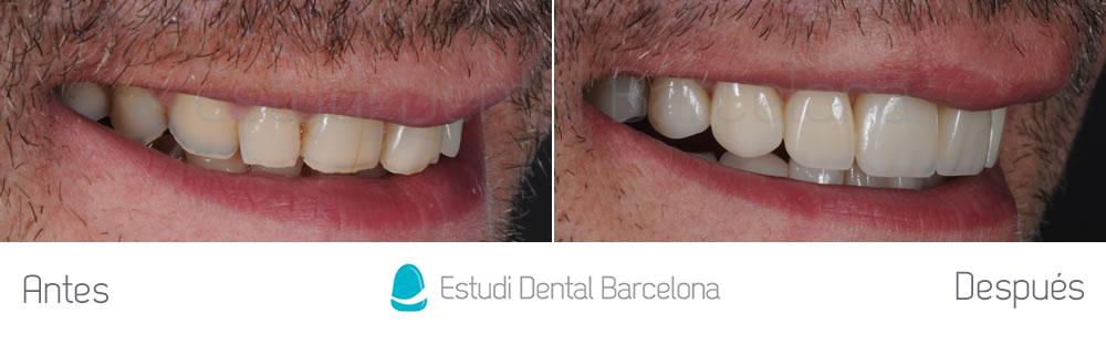 antes y después dientes desgastados con carillas dentales derecha
