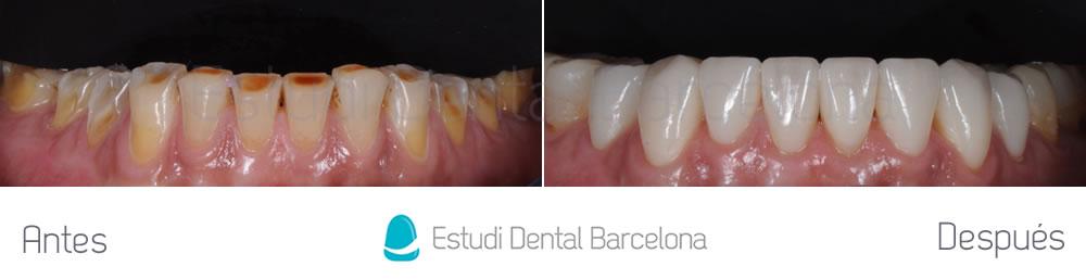 Antes y después dientes desgastados solucionado con carillas, parte inferior