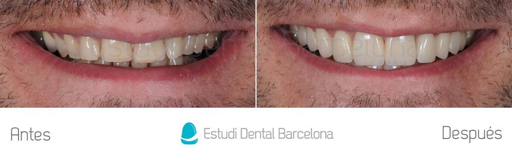 Resultado tratamiento dientes gastados con carillas de porcelana