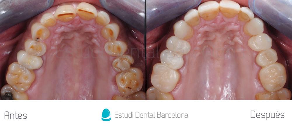 Solución para dientes desgastados por el bruxismo