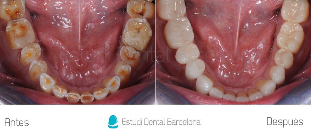 caso mejorar dientes desgastados con carillas dentales interior 2