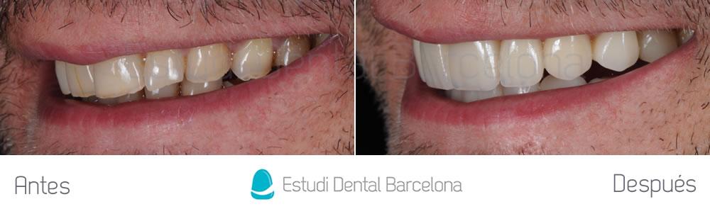Resultado carillas dentales para bruxismo lateral