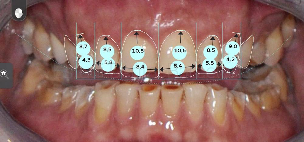 Diagnostico dientes gastados con proporciones