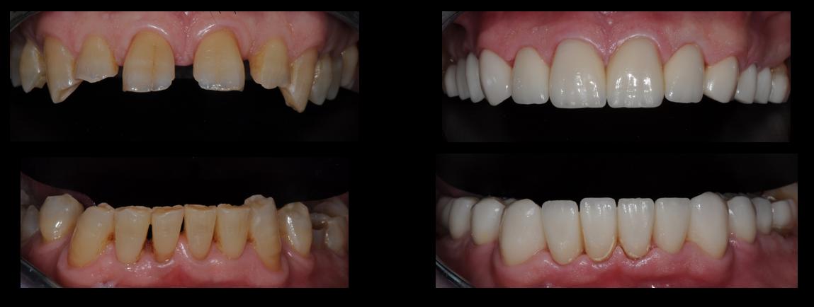 estética dental para desgastes dentales