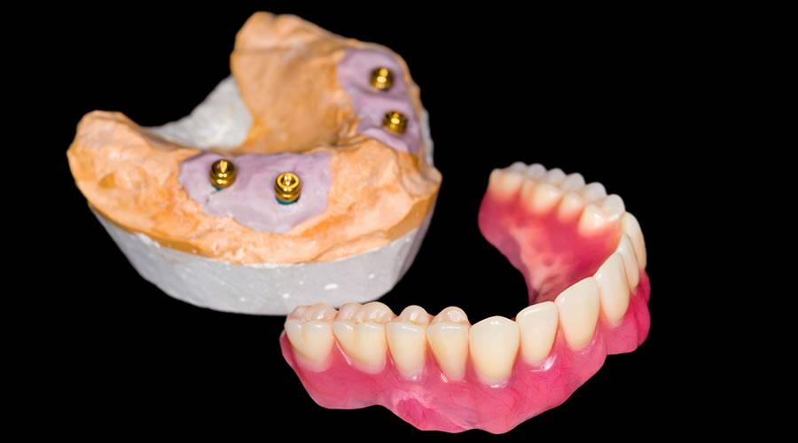 Protesis dentales sobre locator