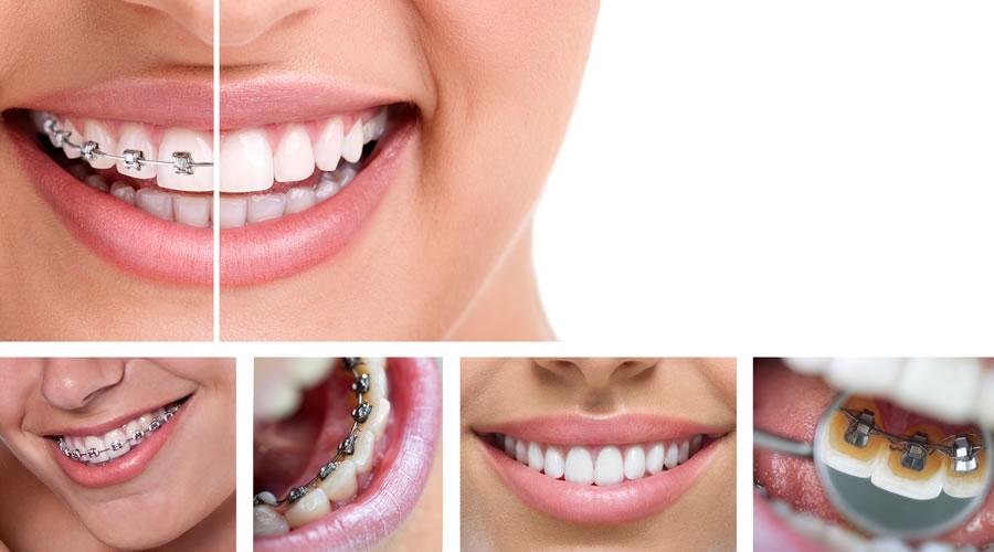 Invisalign o ortodoncia lingual