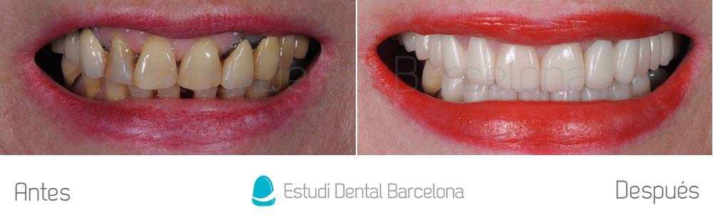 mejorar aspecto de los dientes con carillas y coronas dentales y blanqueamiento - fotos frente