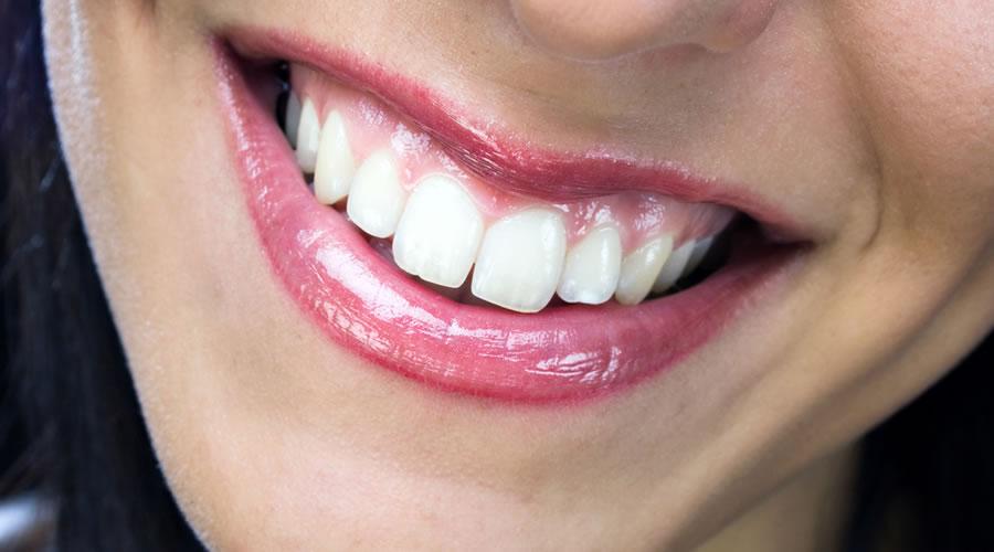 Estética dental: Carillas, coronas